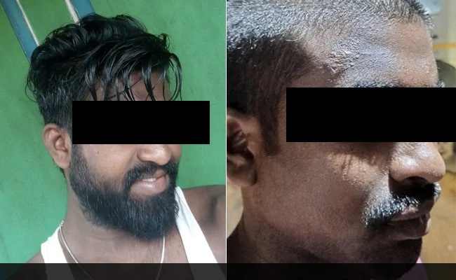 Dalit Man Beaten, Head Shaved Allegedly By Andhra Cops On MLA's Prodding