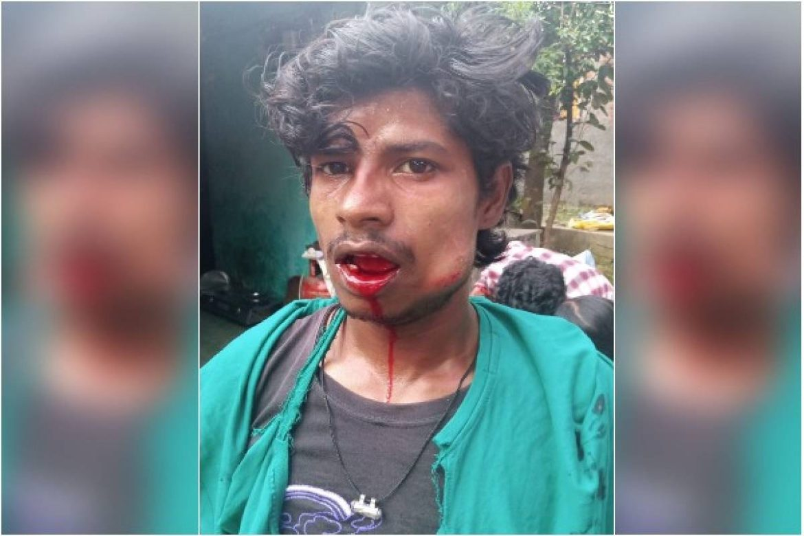 Dabangs beat up Dalit youth for drinking water with hand pump, Bhima Army complains to SP