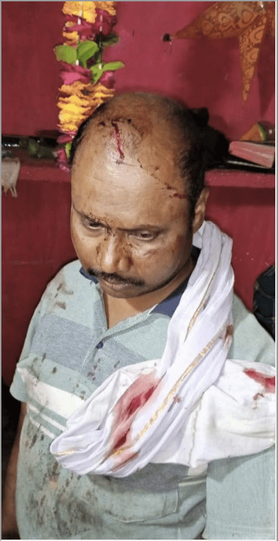 Christians Seriously Injured in Mob Assault on House Church
